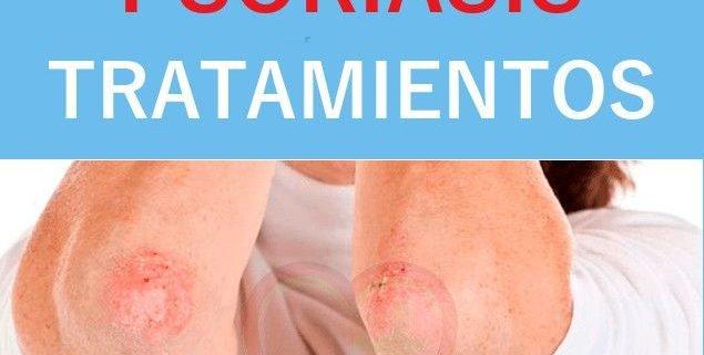 psoriasis tratamiento